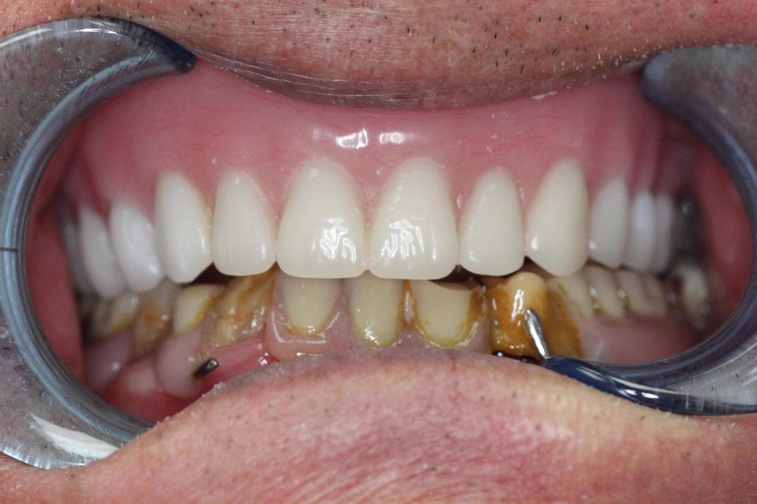 Dentist Irvine Ca My Dentures Do Not Fit Well What Should I Do